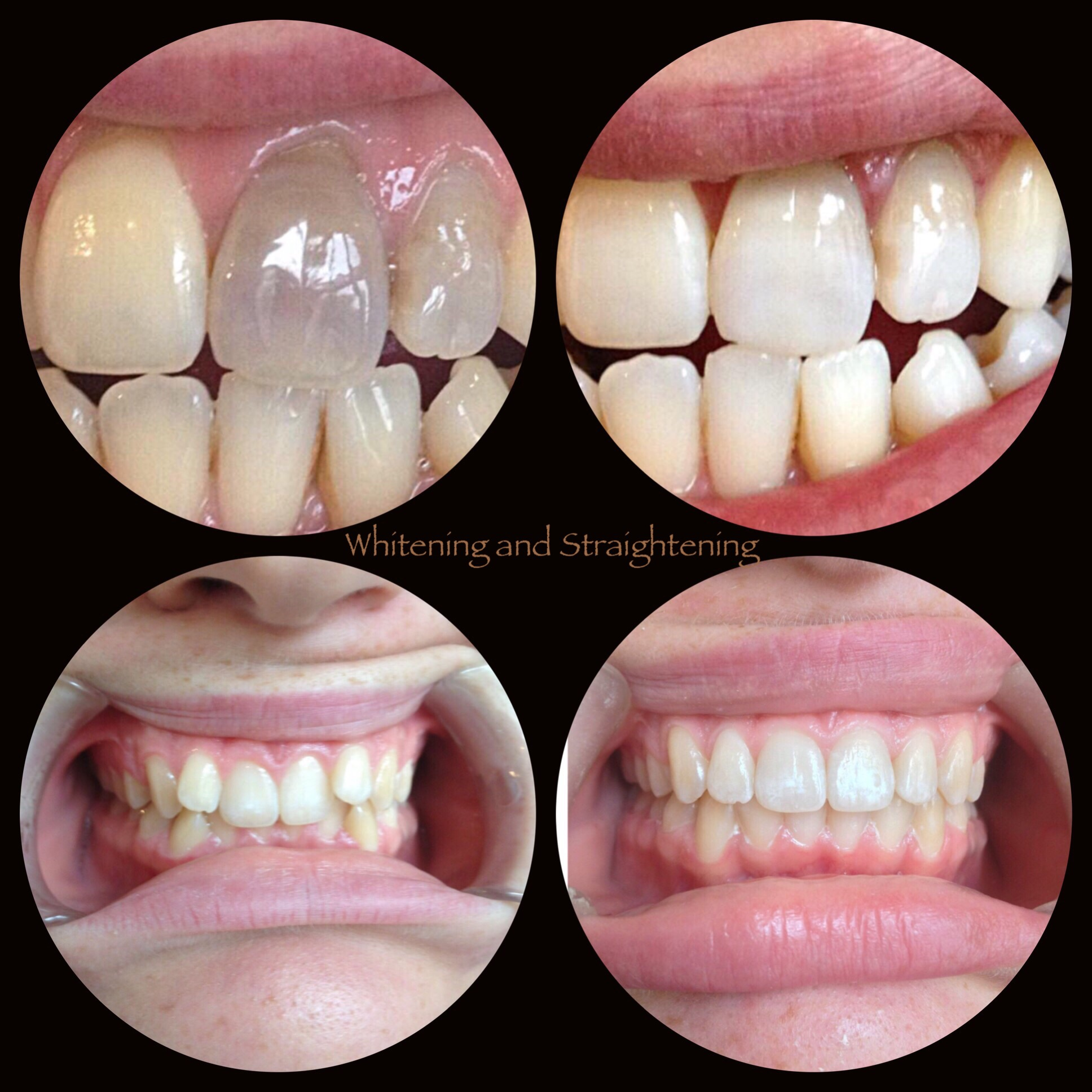 Internal teeth whitening