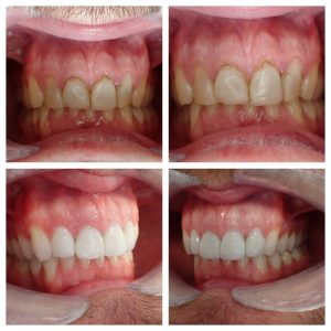 dental veneers exeter