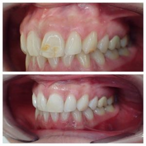 White Fillings to hide discouloured stained teeth