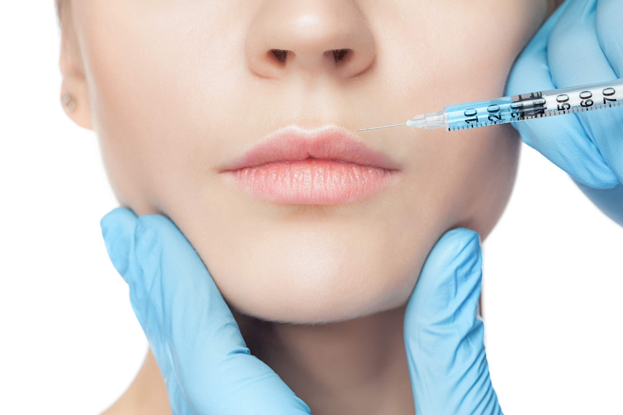 Dermal fillers in Exeter | Anti Wrinkle Injecctions | Whyte