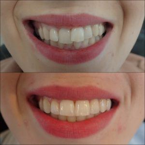 Adult braces in Exeter