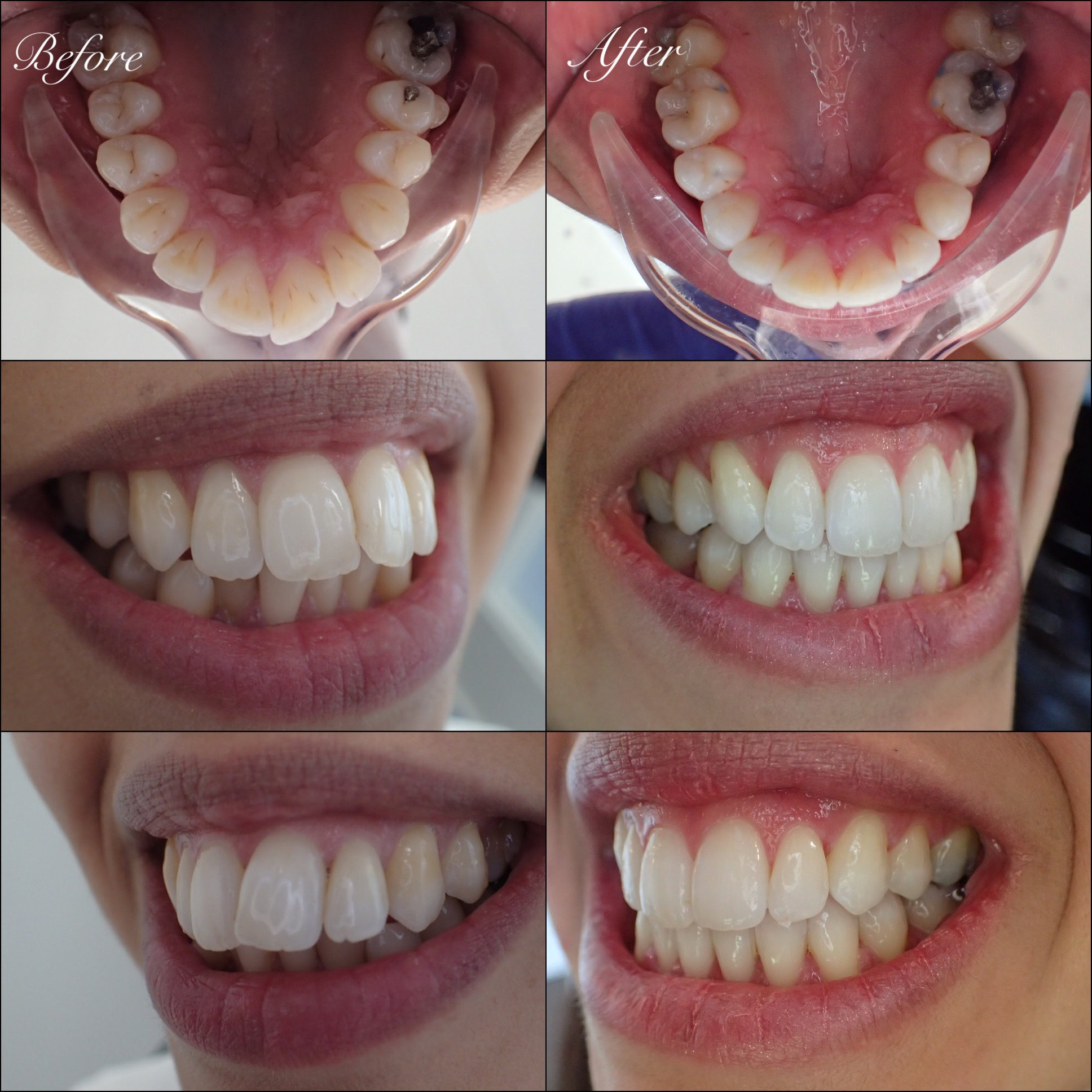 Adult Braces Exeter