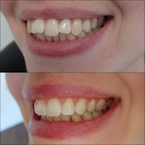 Invisalign Exeter