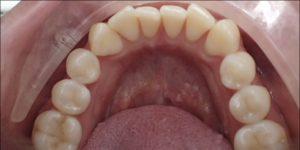 Exeter Dentist